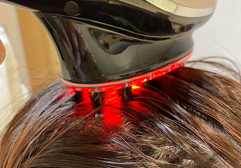 ポレーションをかけながら頭皮の奥まで幹細胞培養液を浸透させます。<br /> 同時に近赤外線を照射することで発毛を促進させます。
