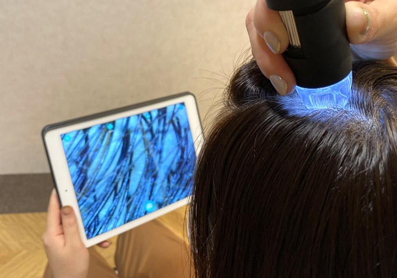 マイクロスコープを使って頭皮をチェック。<br /> 頭皮は健康のバロメーターともいわれ、ストレスや生活習慣で日々変化しますので定期的な診断が必要です。
